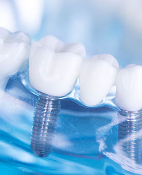 Dental Implants Danvers MA