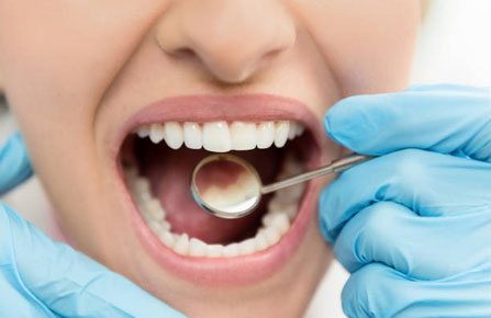 White Tooth Fillings Danvers MA